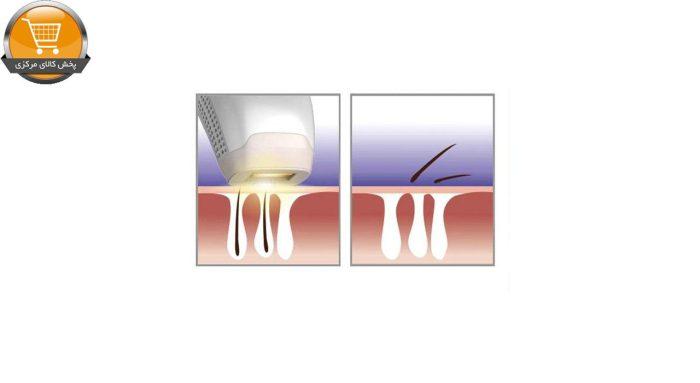 لیزر موهای زائد تاچ بیوتی مدل TB1755 | پخش کالای مرکزی